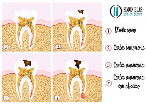 proceso_caries