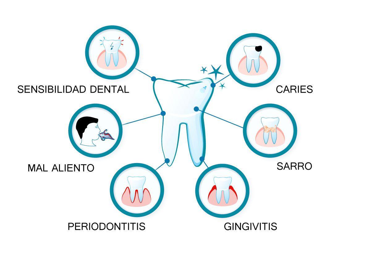 Problemas dentales más frecuentes.