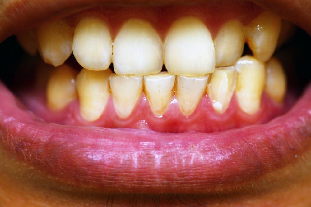 encía con enfermedad periodontal
