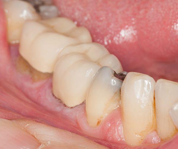 enfermedades-dentales-comunes-caries