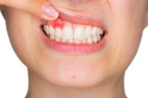 ¿Tienes las encías rojas o inflamadas? Puedes estar sufriendo enfermedad de las encías