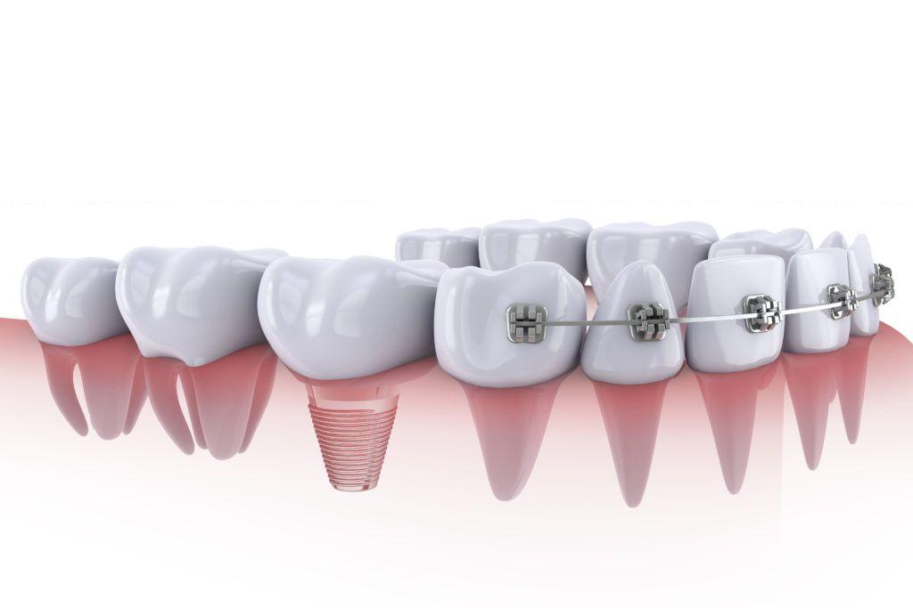 ortodoncia e implantes