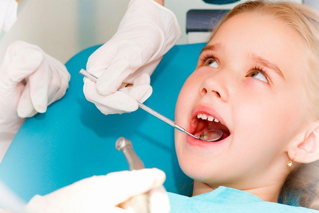 Caries en los dientes de leche